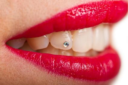Dentální šperk na zuby